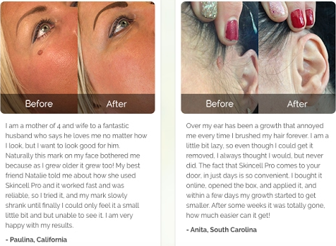Skin Cell Pro Results